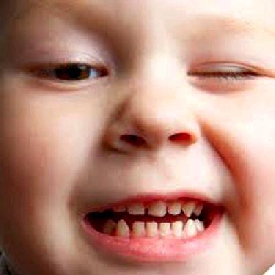 Почему ребенок скрежещет зубами и опасно ли это?